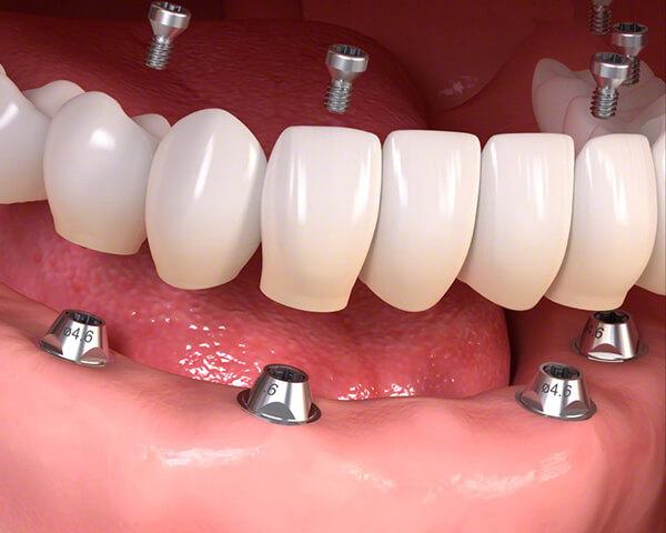 オールオン4/6 仮歯固定用インプラント