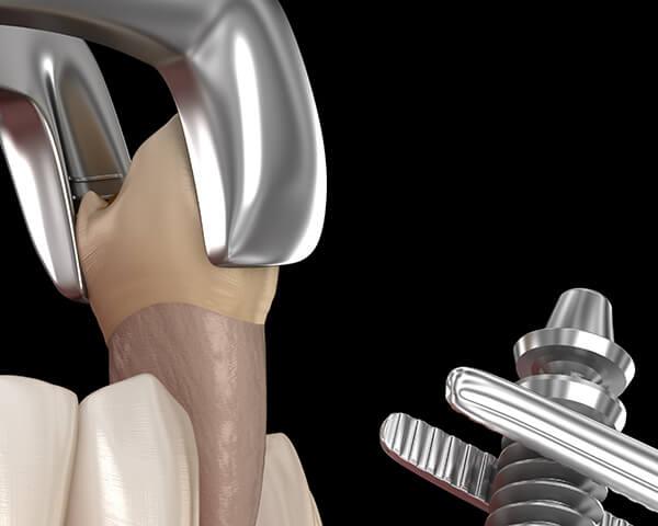 抜歯即時インプラント