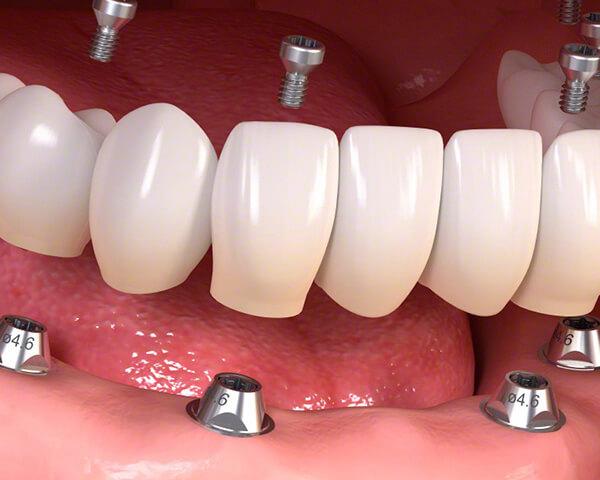 オールオン4/6仮歯固定用インプラント